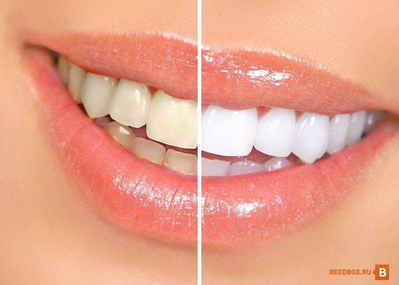 Отбеливание зубов в стоматологии Красноярск