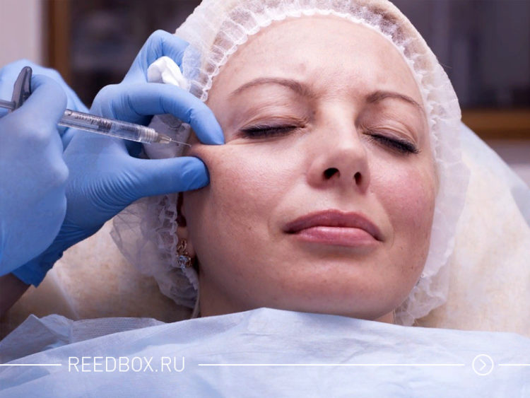 Женщина на процедуре по контурной пластике лица
